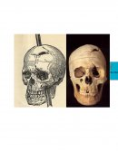 Phineas Gage Story